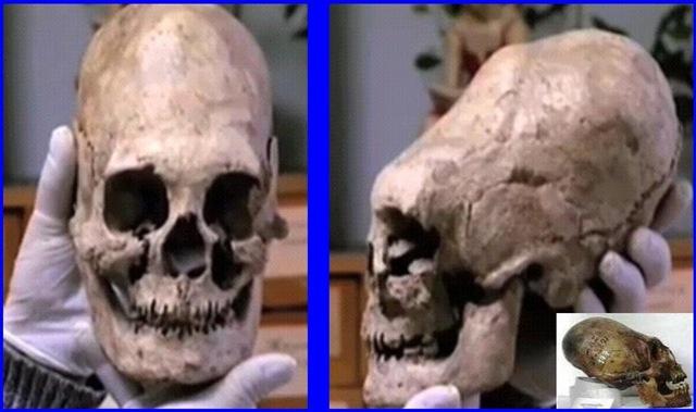 El cráneo de Omsk (y otras deformidades)